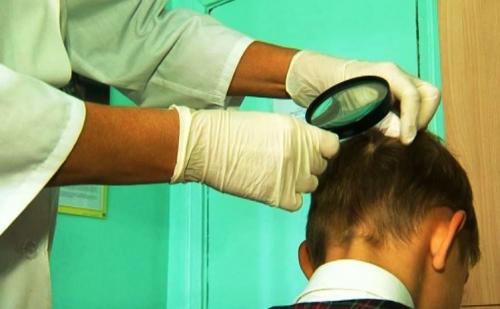Мероприятия при выявлении больного с педикулезом рб